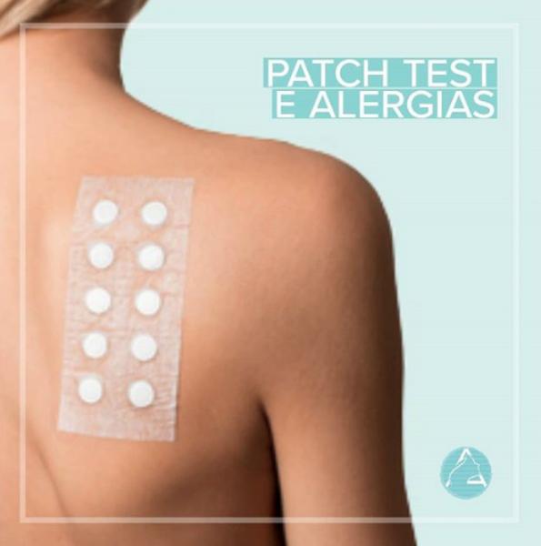 Patch test e Alergias
